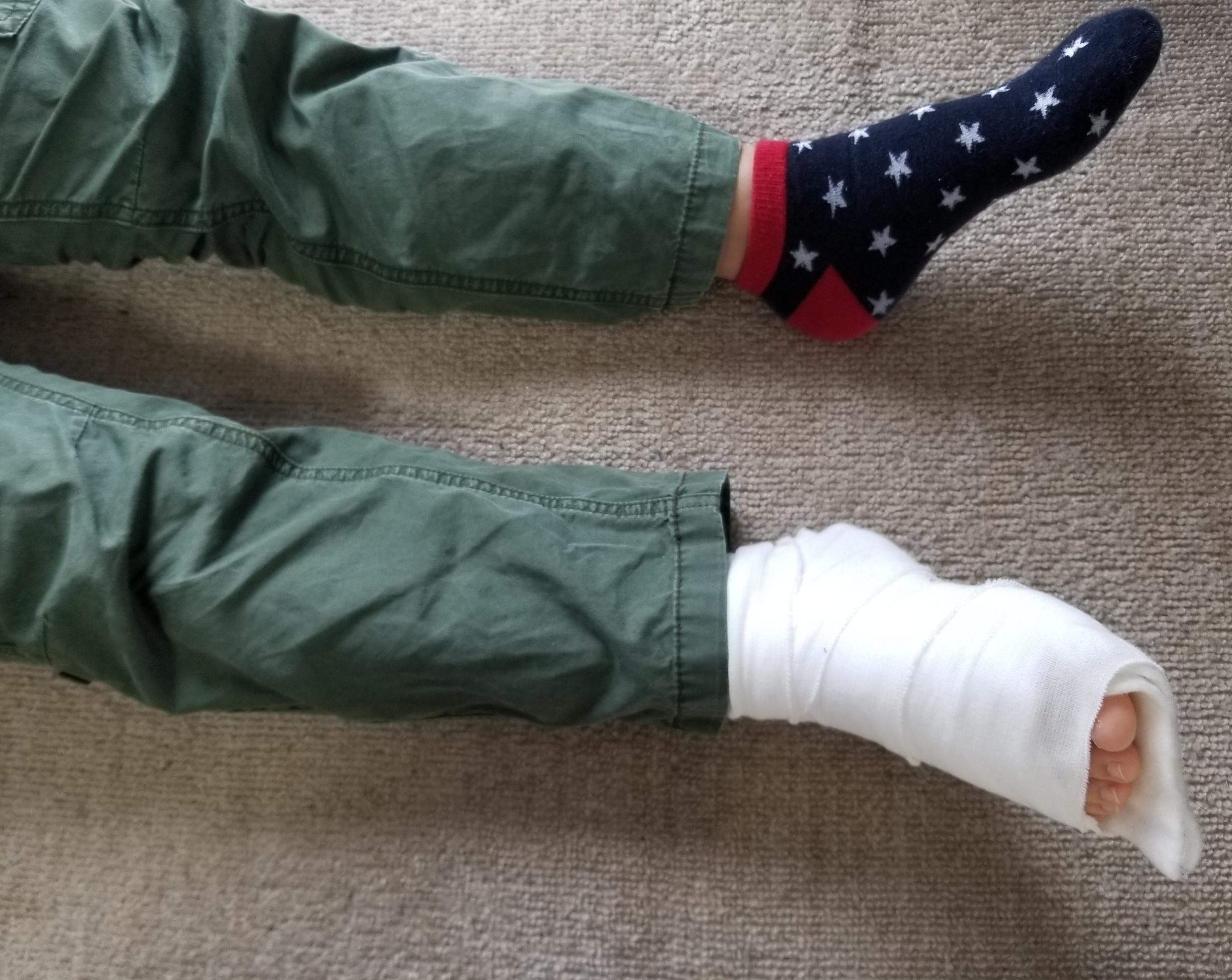子供の怪我